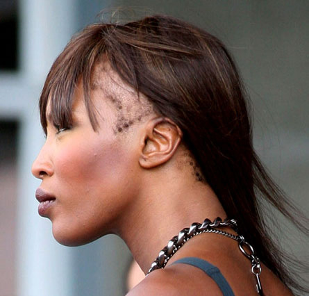Naomi Campbell Hair loss On the Edge: Save Your Edges with Hairline Hair Care